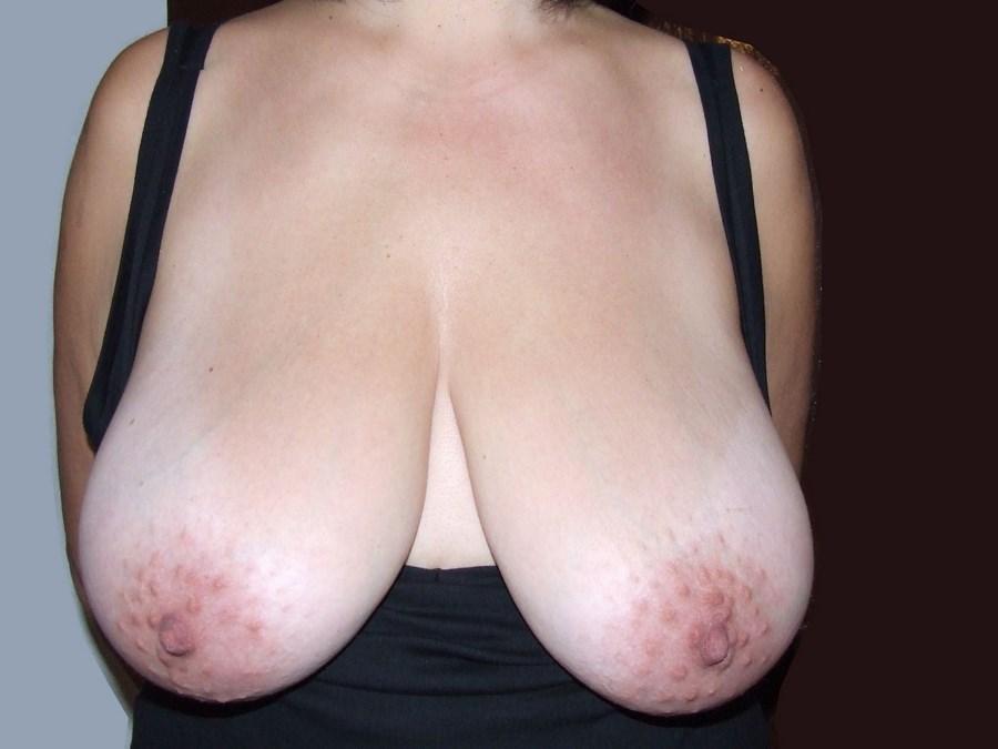 massieren sex sachsen erotische massage
